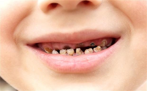rotten-teeth-child_2383492b