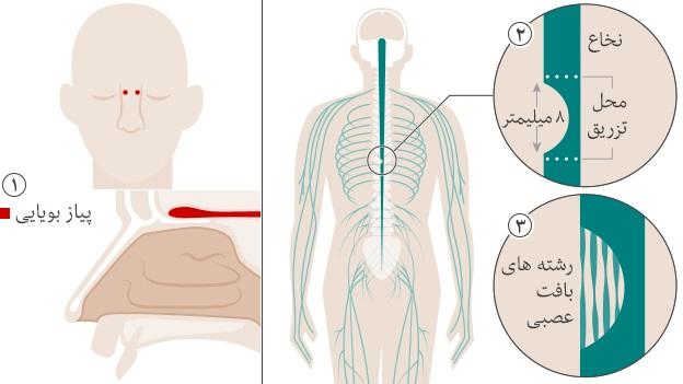 در این تصویر نحوه ترمیم نخاع آسیب دیده را مشاهده می کنید.