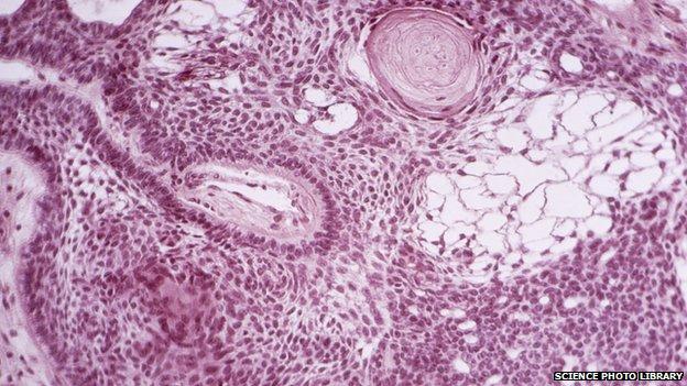 دانشمندان با استفاده از سلولهای بنیادی توانستند تومورهای سخت و جامد سرطانی مغز را نابود کنند.