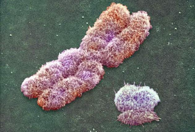 تصویری از کروموزوم X و کروموزوم Y