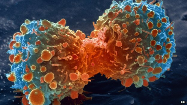 _80000439_m1320644-lung_cancer_cell_d