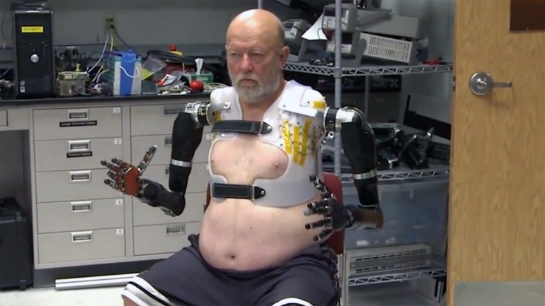 double-amputee-mind-controlled-prosthetics-0