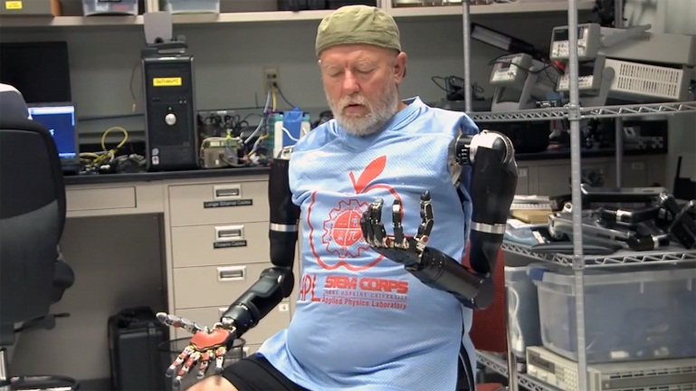 double-amputee-mind-controlled-prosthetics