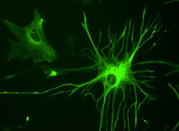 human-glial-cells