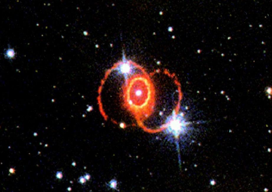 STIS Chemically Analyzes the Ring Around SN 1987a