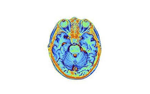 brain_3361595b