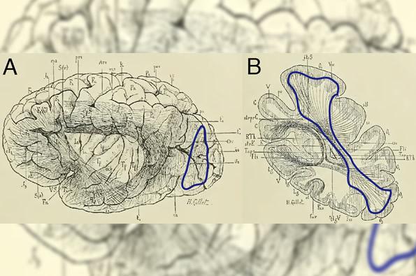 sp15.15 brain1