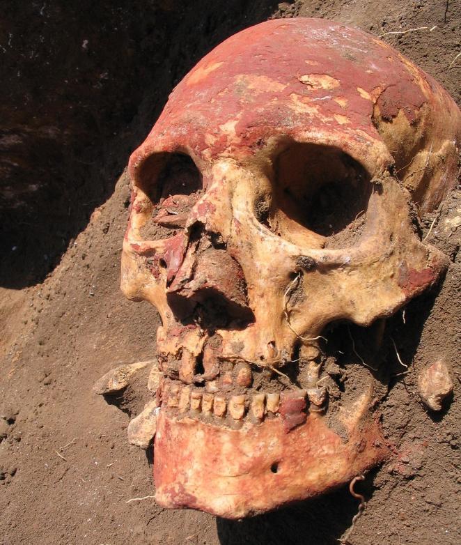 Plague-Bronze-Age
