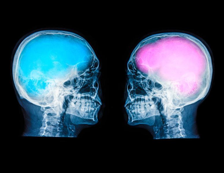 تفاوت مغز مرد و زن