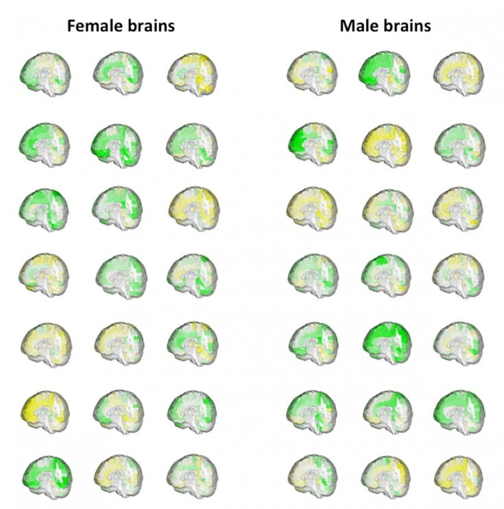 male-female-brain-differences