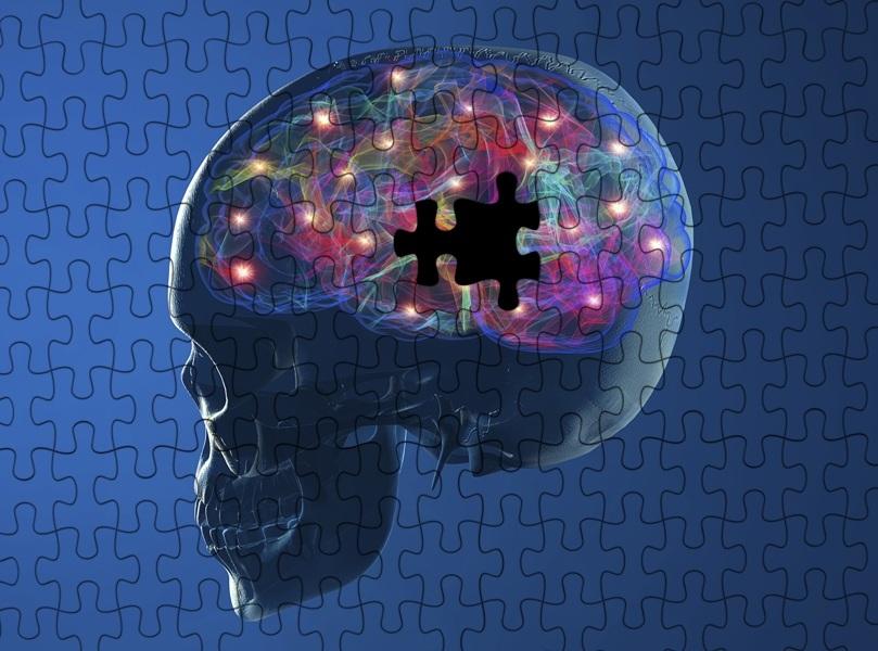 brain-cell-death