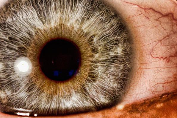 Nv12.15 eye
