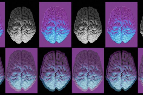 fb26.16 brains_0