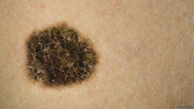 150601124318_melanoma_624x351_thinkstock