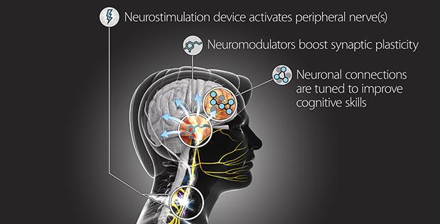 عنوان تصویر: تکنولوژی آموزش عصبی هدفمند(TNT)برای مدل سازی دقیق و ایمنی اعصاب محیطی در کنترل پلاستیسیته سیناپسی برای آموزش مهارت های شناختی طراحی خواهد شد.