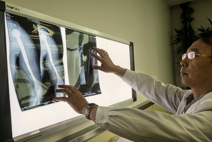 ژیاوپینگ رن، جراح ارتوپد چینی که به فکر عملی کردن پیوند سر انسان به بدن شخص ِ دیگری است.
