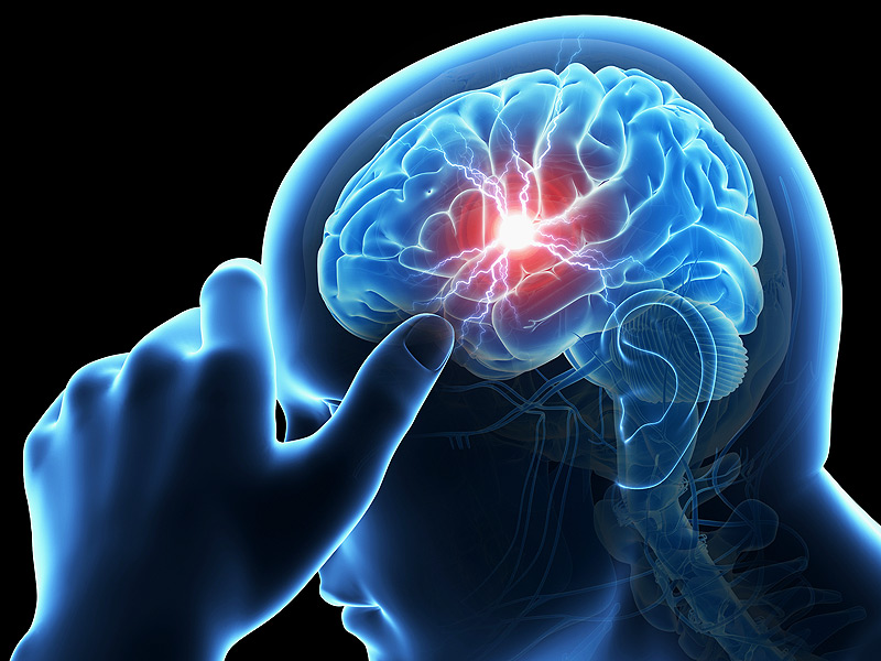 dt_150709_migraine_headache_brain_stroke_800x600