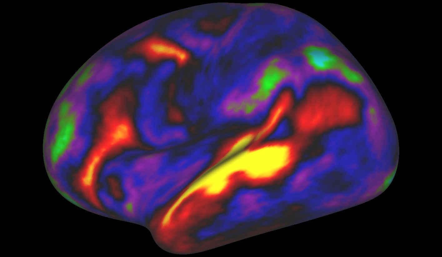 brain-map-1