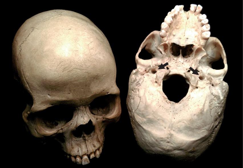 در جمجمههای انسان دو حفره برای عبور عروق داخلی شریان کاروتید وجود دارد که با میزان متابولیک مغز در ارتباط است