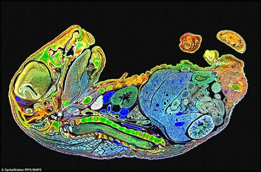 این تصویر یک جنین موش است که در آن ساختارهای داخلی بدن موش به صورت کاملا واضح و باورنکردنی مشخص است.