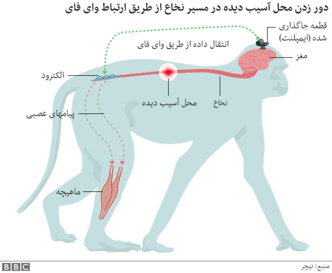 استفاده از دو درونکاشت (ایمپلنت) ارتباط بین دو سوی نخاع قطع شده را بار دیگر برقرار میکند