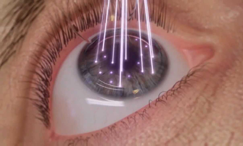 wavelight-lasik-demo-800x482