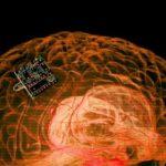 تراشه ای در مغز انسان، که بیماری را درمان می کند