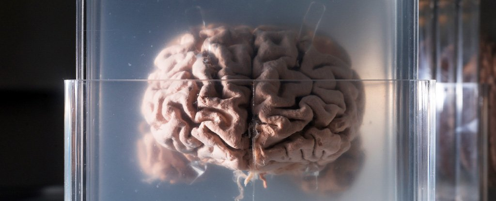 human brain slides istock