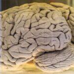 چرا مغز ما دارای چین خوردگی است؟